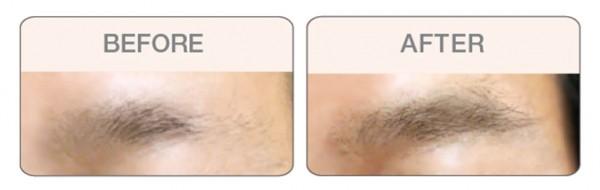 BROWFOOD Phyto-Medic Augenbrauenserum Eyebrow Enhancer